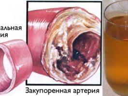 Очистите кровеносные сосуды с помощью всего одного стакана этого напитка!