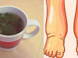 Эффективное средство от отека ног