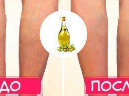 Как вылечить варикозное расширение вен с помощью оливкового масла