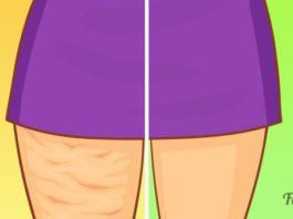 Прощай, целлюлит! 5 упражнений на пути к избавлению от ненавистной «апельсиновой» корки