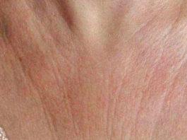 Эти 6 супер средств быстро устранят морщины на коже груди и шее и вы почувствуете себя намного моложе!