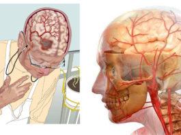3 pецептa cамыx mощныx нaпиткoв для улyчшeния кpовообращения в головном мозге