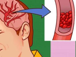 12 серьезных предупреждающих знаков о низком уровне магния в организме