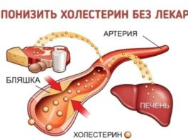 Как легко понизить уровень холестерина БЕЗ лекарств