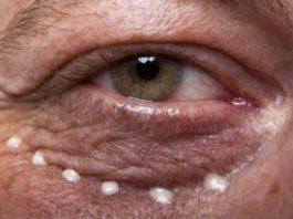 Народные средства от морщин под глазами: Эффект гарантируем. Проверен