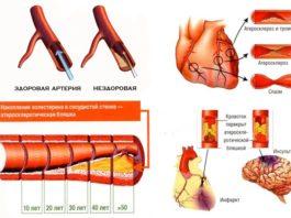 Очищение сосудов от тромбов и холестериновых бляшек
