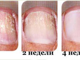 Заметили грибок на ногтях. Действуй немедленно и устрани его быстро
