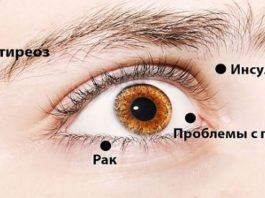 8 Сигналов, При Помощи Которых Глаза Предупреждают О Проблемах Со Здоровьем. Обрати Внимание