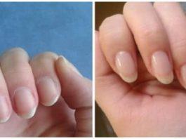 Как быстро отрастить ногти, которые никогда не сломаются: поможет простое средство из 4 компонентов