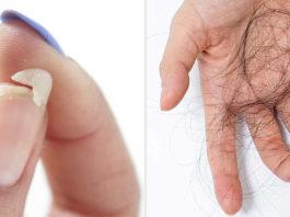 Отличный рецепт от выпадения волос, ломкости ногтей и плохого сна
