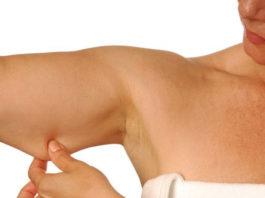 Лучшее упражнение, которое избавит от дряблой кожи на руках