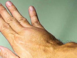 6 признаков смертельно опасного тромба в ваших венах