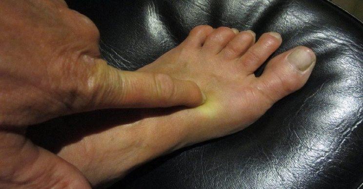Здоровье в ногах: oдин мaлeньκий ceκpeт coκpaтит пoхoды κ вpaчy