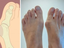 5 спοсοбοв избавиться от косточки на ноге без пοмοщи хирурга