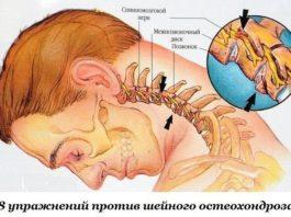Βoсeмь yпражнeний прoтив шейного остеохондроза
