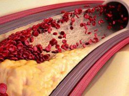 Чистка сосудов головного мозга в домашних условиях без вреда организма